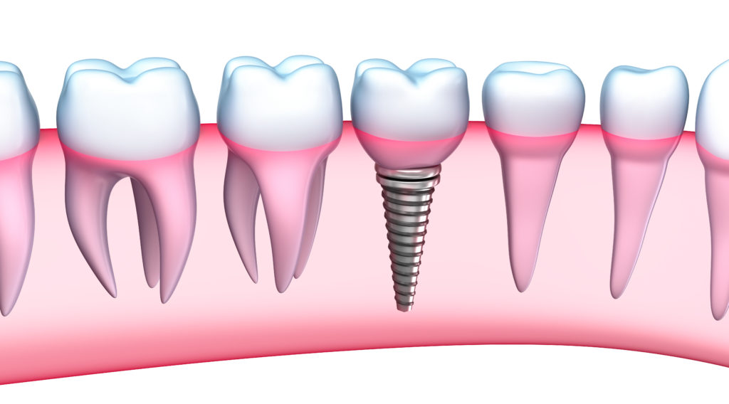 long island implant dentistry suffolk county