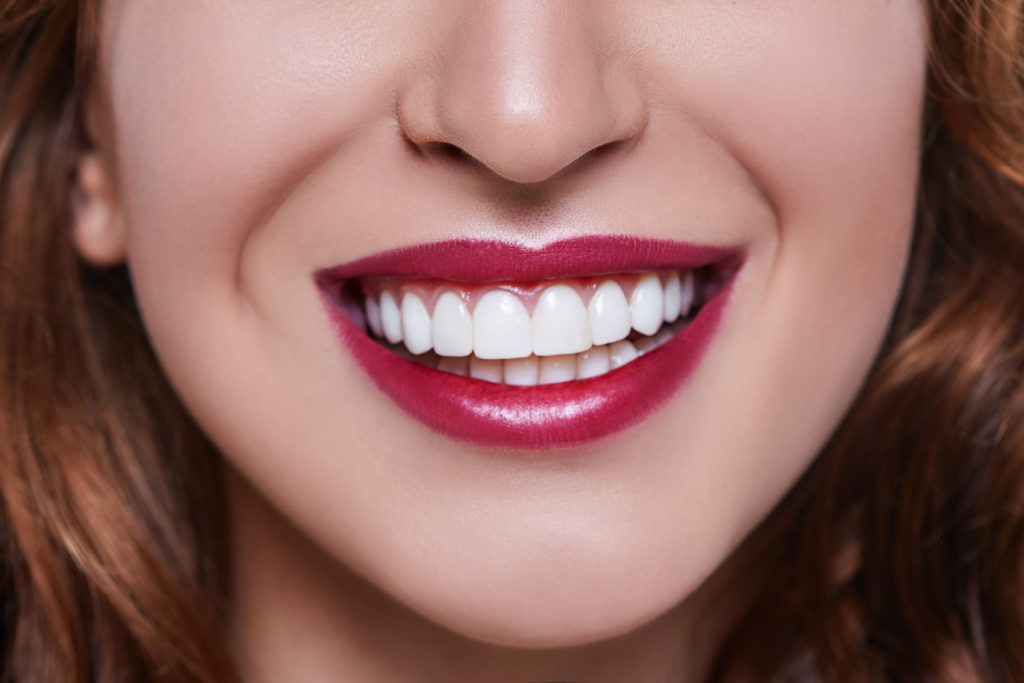 long island dental veneers cost