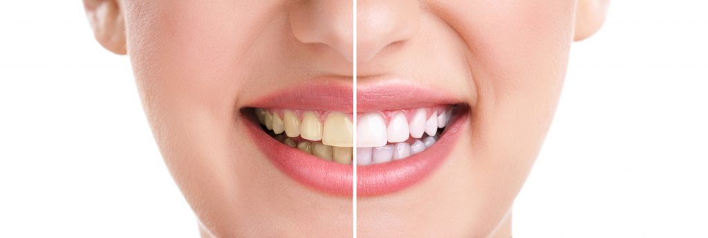 zoom whitening long island suffolk county