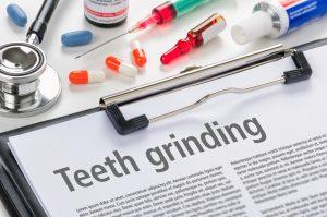 teeth grinding long island