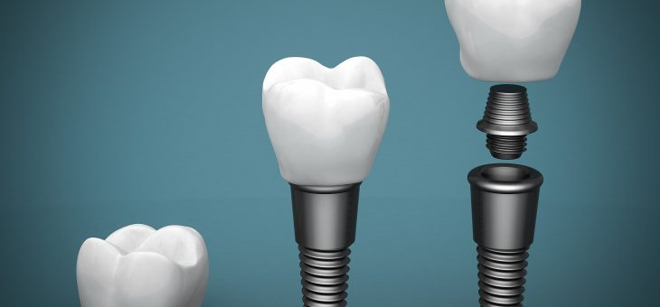 3 Reasons to Consider Getting Dental Implants