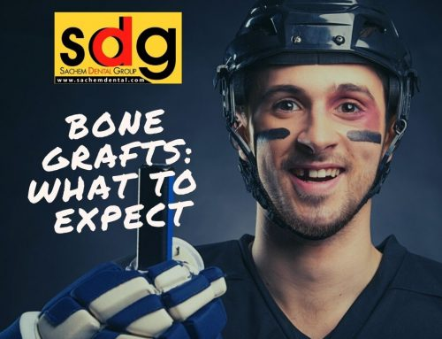 Suffolk County Bone Grafting: What to Expect