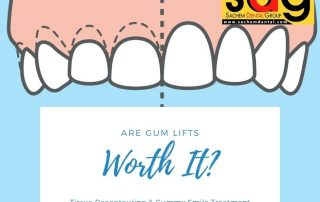 benefits and risks of gum lifts