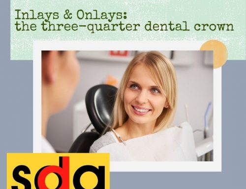 Inlays and Onlays: The 3/4 Dental Crown