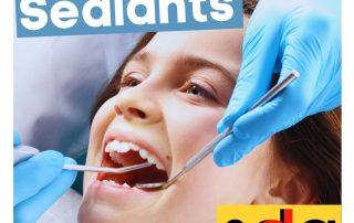 dental sealants in Long Island