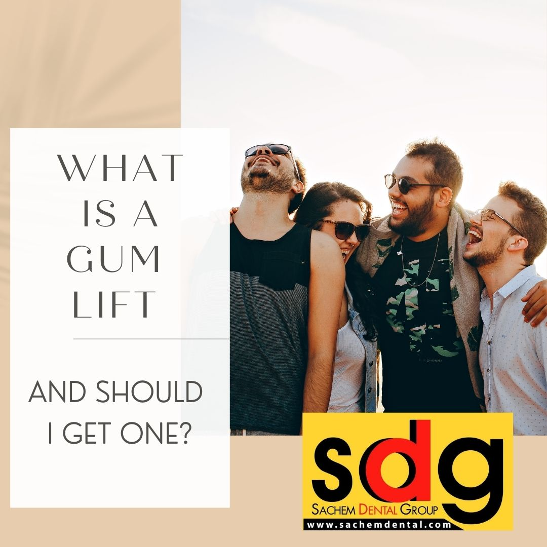 gum recontouring and gummy smile treatment