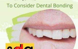 should I get dental bonding