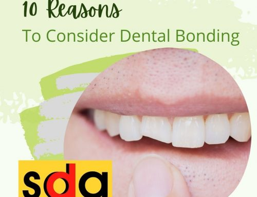 10 Reasons to Consider Dental Bonding